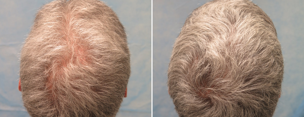 "PRP Patient CMR before treatment (left) and 7 weeks after his second PRP session (right) Patient CMR has had two PRP therapy sessions. The ""after"" photo was taken three months after his first treatment and seven weeks after his second treatment. The patient has been on finasteride for over 15 years."
