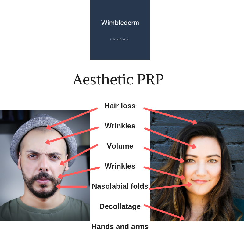 Some of the uses of aesthetic PRP